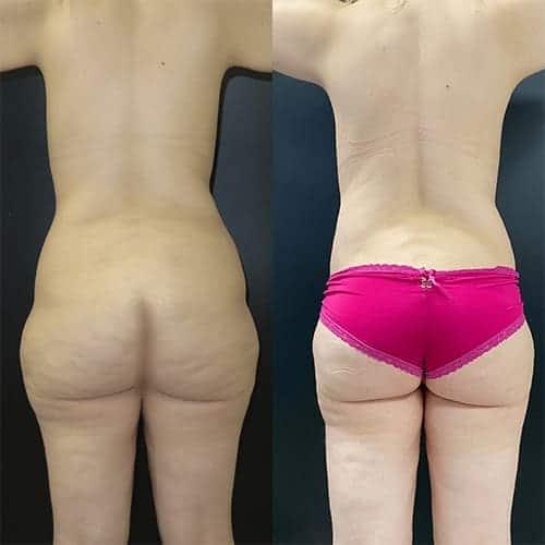 bodylift avant apres bodylift apres sleeve bodylift cicatrice docteur harold chatel chirurgien esthetique paris 4