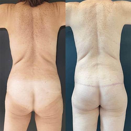 bodylift avant apres bodylift apres sleeve bodylift cicatrice docteur harold chatel chirurgien esthetique paris 6