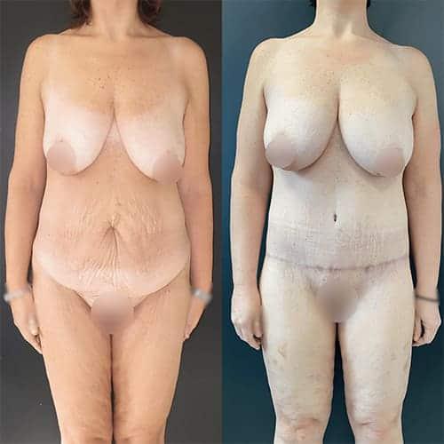 bodylift avant apres bodylift apres sleeve bodylift cicatrice docteur harold chatel chirurgien esthetique paris 8