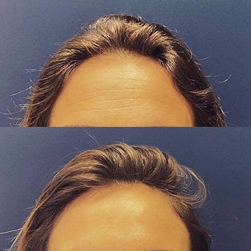 botox avant apres botox visage botox paris docteur harold chatel medecine esthetique paris 15 chirurgien esthetique