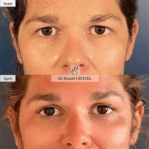 botox avant apres botox visage botox paris docteur harold chatel medecine esthetique paris 16 chirurgien esthetique