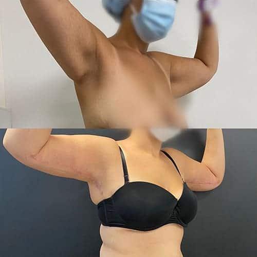 brachioplastie prix brachioplastie cicatrice brachioplastie avant apres docteur harold chatel chirurgien esthetique paris 15
