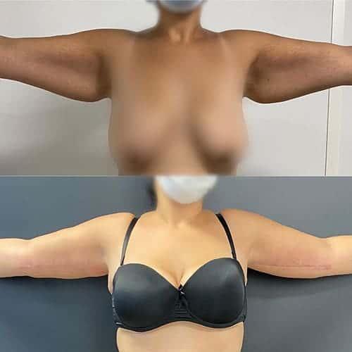 brachioplastie prix brachioplastie cicatrice brachioplastie avant apres docteur harold chatel chirurgien esthetique paris 16