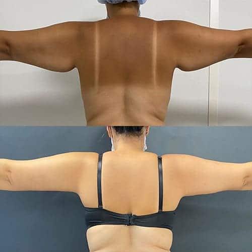 brachioplastie prix brachioplastie cicatrice brachioplastie avant apres docteur harold chatel chirurgien esthetique paris 17