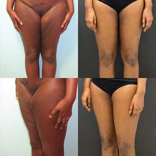 cruroplastie cicatrice cruroplastie prix cruroplastie photos docteur harold chatel chirurgien esthetique paris 16