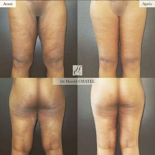 cruroplastie cicatrice cruroplastie prix cruroplastie photos docteur harold chatel chirurgien esthetique paris 17
