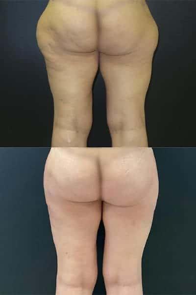 cruroplastie cicatrice cruroplastie prix cruroplastie photos docteur harold chatel chirurgien esthetique paris 7