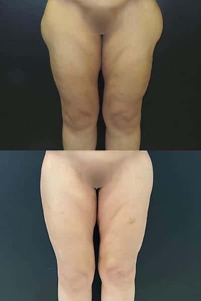 cruroplastie cicatrice cruroplastie prix cruroplastie photos docteur harold chatel chirurgien esthetique paris centre