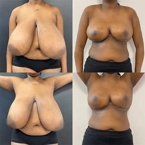 docteur harold chatel reduction mammaire avant apres reduction mammaire cicatrice reduction mammaire temoignage reduction mammaire paris 1