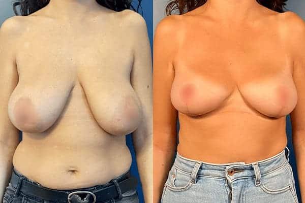 docteur harold chatel reduction mammaire avant apres reduction mammaire cicatrice reduction mammaire temoignage reduction mammaire paris 16