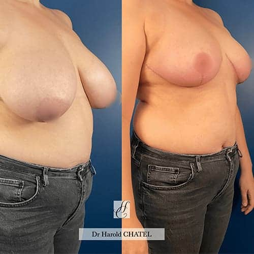 docteur harold chatel reduction mammaire avant apres reduction mammaire cicatrice reduction mammaire temoignage reduction mammaire paris 3