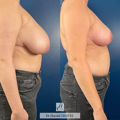docteur harold chatel reduction mammaire avant apres reduction mammaire cicatrice reduction mammaire temoignage reduction mammaire paris 4
