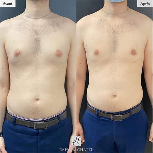 gynecomastie homme gynecomastie musculation gynecomastie avant apres docteur harold chatel chirurgien esthetique paris 16