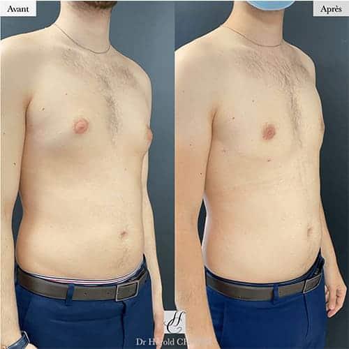 gynecomastie homme gynecomastie musculation gynecomastie avant apres docteur harold chatel chirurgien esthetique paris 19
