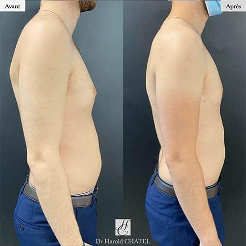 gynecomastie homme gynecomastie musculation gynecomastie avant apres docteur harold chatel chirurgien esthetique paris 20
