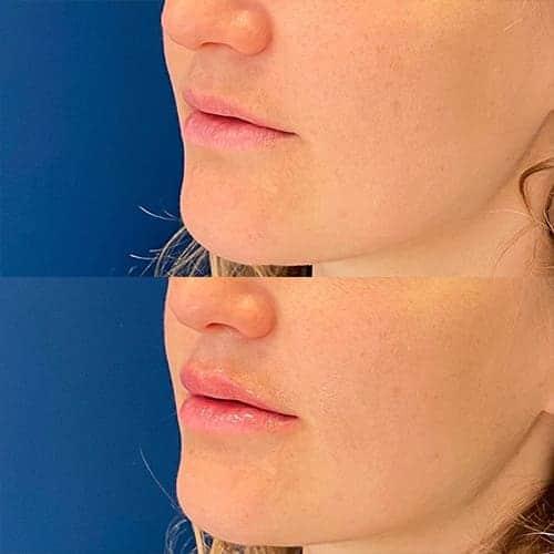 injection acide hyaluronique levres acide hyaluronique avant apres docteur harold chatel medecine esthetique paris 16 chirurgien esthetique