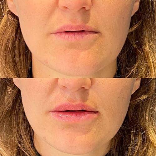 injection acide hyaluronique levres acide hyaluronique avant apres docteur harold chatel medecine esthetique paris 17 chirurgien esthetique