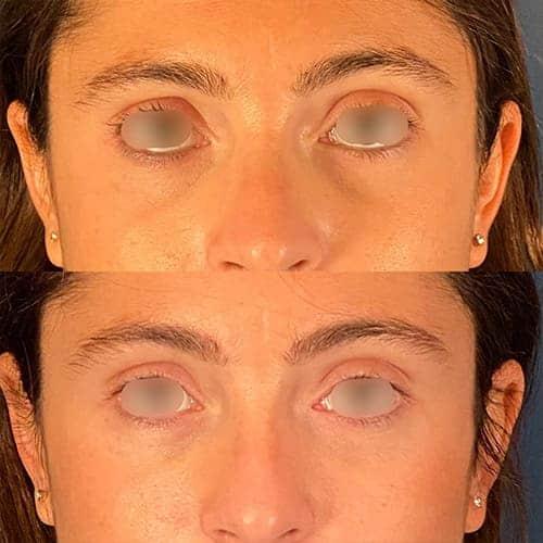 injection acide hyaluronique nez acide hyaluronique avant apres docteur harold chatel medecine esthetique paris 15 chirurgien esthetique