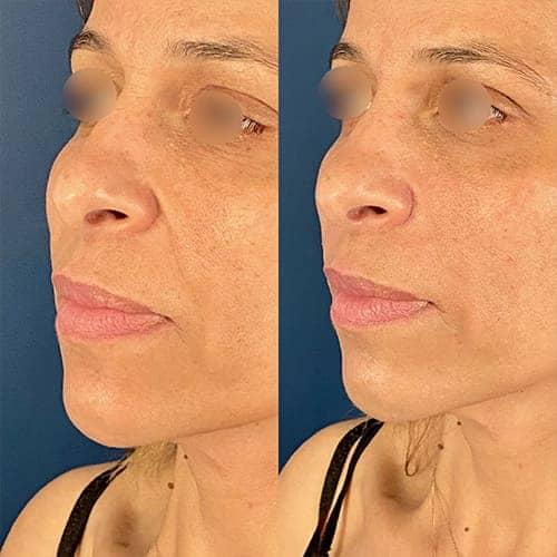 injection acide hyaluronique nez acide hyaluronique avant apres docteur harold chatel medecine esthetique paris 16 chirurgien esthetique 1