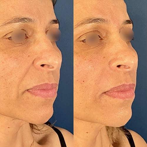 injection acide hyaluronique nez acide hyaluronique avant apres docteur harold chatel medecine esthetique paris 16 chirurgien esthetique 2