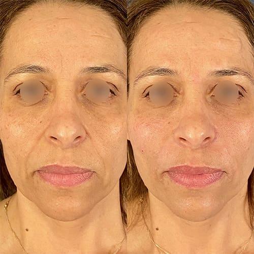 injection acide hyaluronique nez acide hyaluronique avant apres docteur harold chatel medecine esthetique paris 16 chirurgien esthetique 3