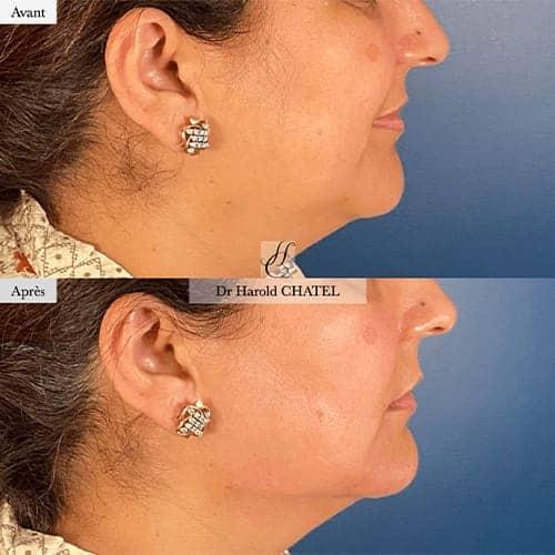injection acide hyaluronique visage acide hyaluronique avant apres docteur harold chatel medecine esthetique paris 16 chirurgien esthetique 2