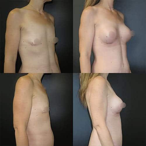 prothese mammaire taille forme prothese mammaire duree de vie docteur harold chatel chirurgien esthetique paris 16