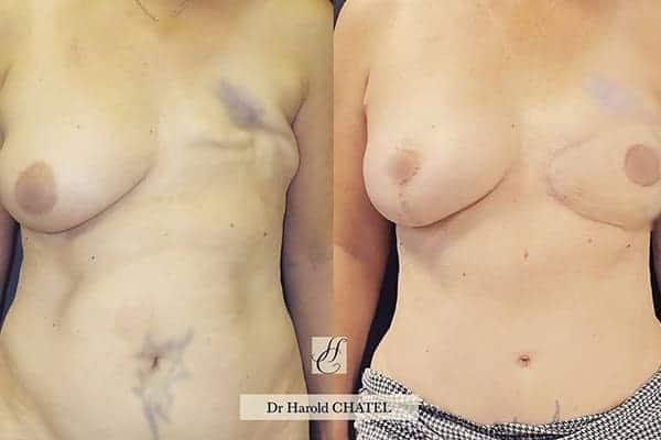 reconstruction mammaire apres cancer photo reconstruction mammaire par injection de graisse photos reconstruction mammaire par prothese photos docteur harold chatel paris 15