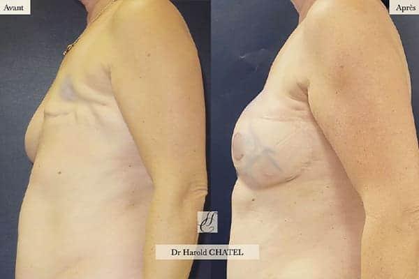 reconstruction mammaire apres cancer photo reconstruction mammaire par injection de graisse photos reconstruction mammaire par prothese photos docteur harold chatel paris 16
