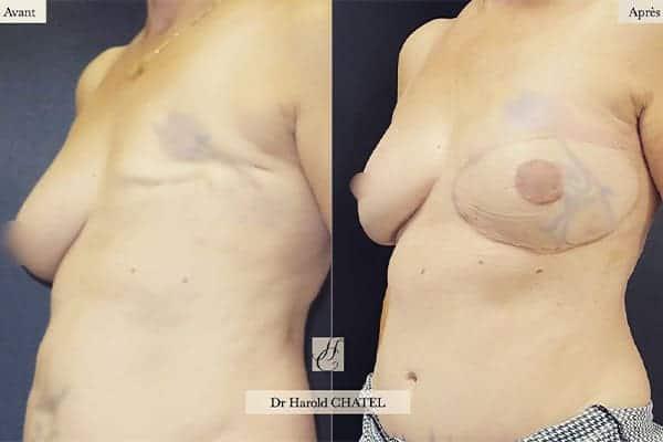 reconstruction mammaire apres cancer photo reconstruction mammaire par injection de graisse photos reconstruction mammaire par prothese photos docteur harold chatel paris 17
