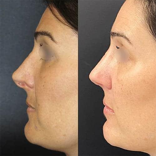 rhinoplastie avant apres rhinoplastie paris rhinoplastie gros nez docteur harold chatel chirurgien esthetique paris 15