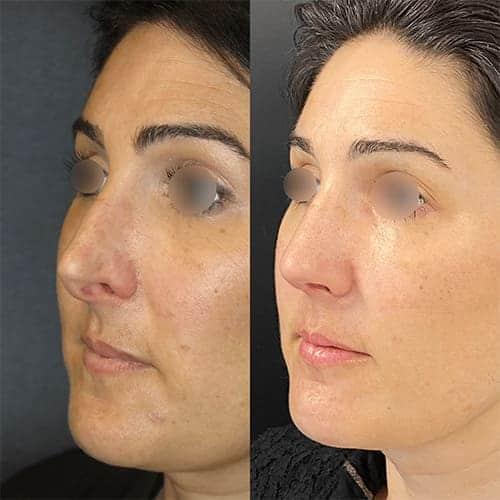 rhinoplastie avant apres rhinoplastie paris rhinoplastie gros nez docteur harold chatel chirurgien esthetique paris 16