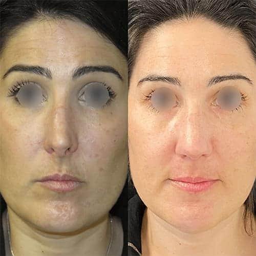rhinoplastie avant apres rhinoplastie paris rhinoplastie gros nez docteur harold chatel chirurgien esthetique paris 17