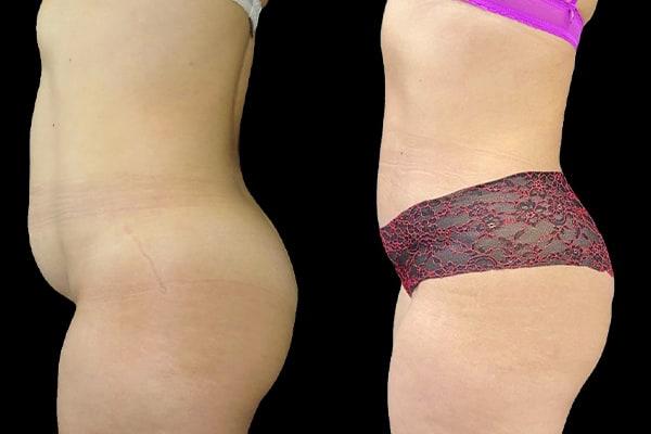 abdominoplastie cicatrice 1 an apres cure diastasis ventre abdo chirurgie chirurgie plastique et reparatrice a paris docteur Harold Chatel chirurgien esthetique Paris 16