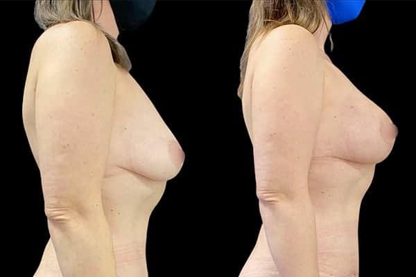 avant apres lipofilling mammaire 1 ans apres lipofilling mammaire prix chirurgie plastique et reparatrice a paris docteur Harold Chatel chirurgien esthetique Paris 16