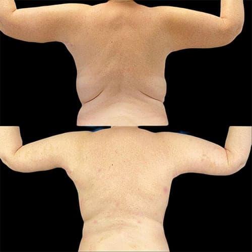 brachioplastie cicatrice avant apres lifting des bras tarifchirurgie plastique et reparatrice a paris docteur Harold Chatel chirurgien esthetique Paris 16