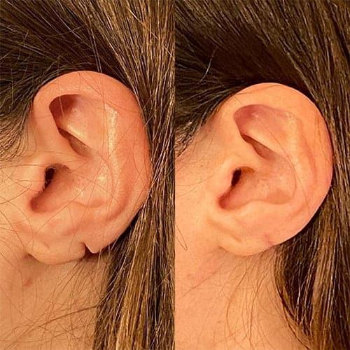 chirurgie lobe fendu remboursement solution chirurgie lobe d oreille fendu prix chirurgie plastique et reparatrice a paris docteur Harold Chatel chirurgien esthetique Paris 16