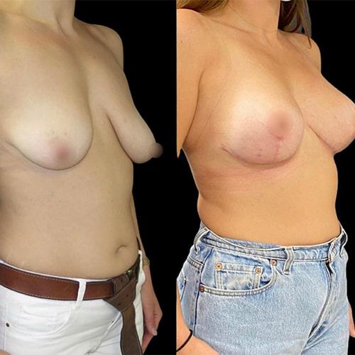 forme prothese mammaire prix avant apres nouvelle prothese mammaire a vie chirurgie plastique et reparatrice a paris docteur Harold Chatel chirurgien esthetique Paris 16