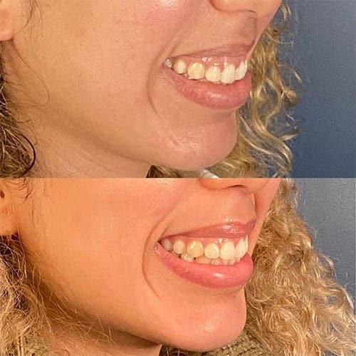 gencive trop apparente sourire gencive sourire gingival chirurgie paris chirurgie plastique et reparatrice a paris docteur Harold Chatel chirurgien esthetique Paris 16