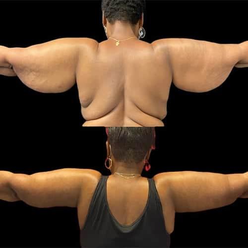 lifting bras photos avant apres lifting des bras tarif et avis chirurgie plastique et reparatrice a paris docteur Harold Chatel chirurgien esthetique Paris 16