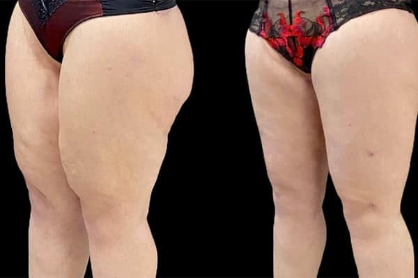 lifting interne des cuisses temoignage lifting cuisses photos cruroplastie avant apres chirurgie plastique et reparatrice a paris docteur Harold Chatel chirurgien esthetique Paris 16