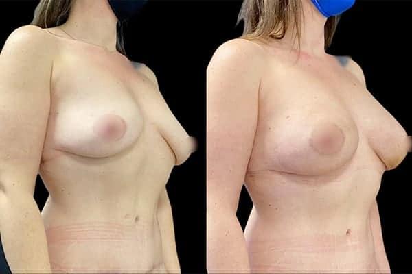 lipofilling mammaire photo avant apres augmentation mammaire injection graisse chirurgie plastique et reparatrice a paris docteur Harold Chatel chirurgien esthetique Paris 16