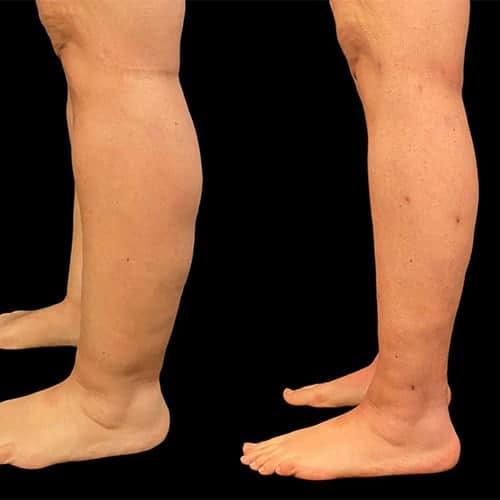 liposuccion cheville mollet liposculpture mollet liposuccion des mollets avant apreschirurgie plastique et reparatrice a paris docteur Harold Chatel chirurgien esthetique Paris 16