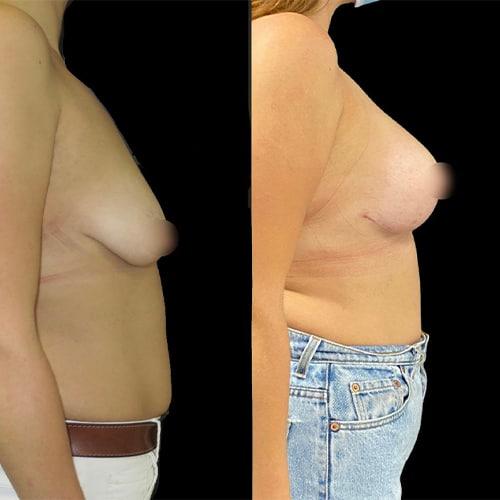 prothese mammaire avant apres augmentation mammaire taille chirurgie plastique et reparatrice a paris docteur Harold Chatel chirurgien esthetique Paris 16