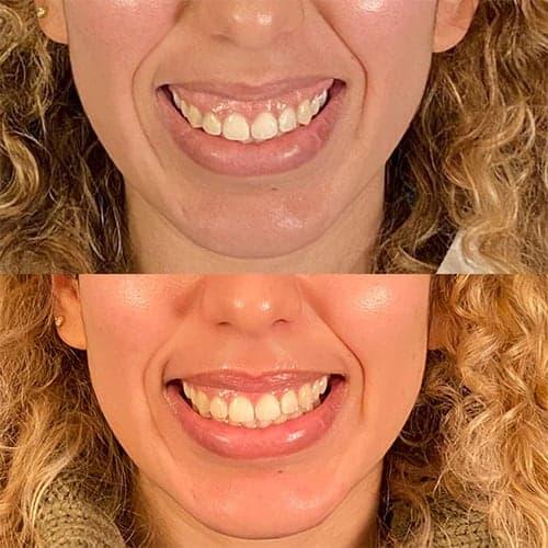 sourire gingival botox avant apres sourire gingival solution botox gencive trop visible chirurgie plastique et reparatrice a paris docteur Harold Chatel chirurgien esthetique Paris 16